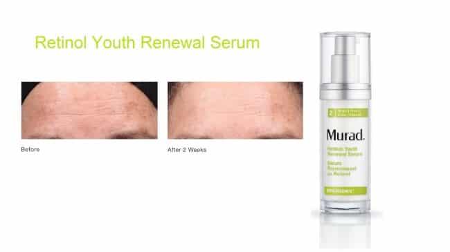 Murad Retinol Youth Renewal Serum ervaring